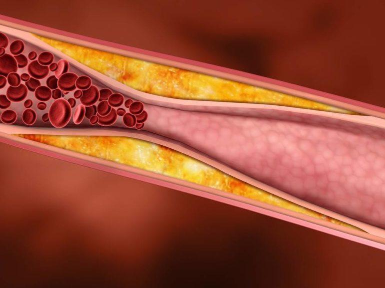 Забитый холестериновыми бляшками сосуд