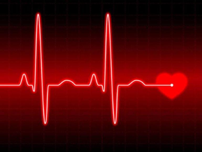 Теперь получить кардиограмму будет очень просто