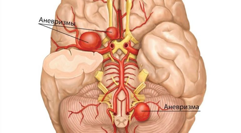 Лечение аневризмы сосудов головного мозга в Израиле