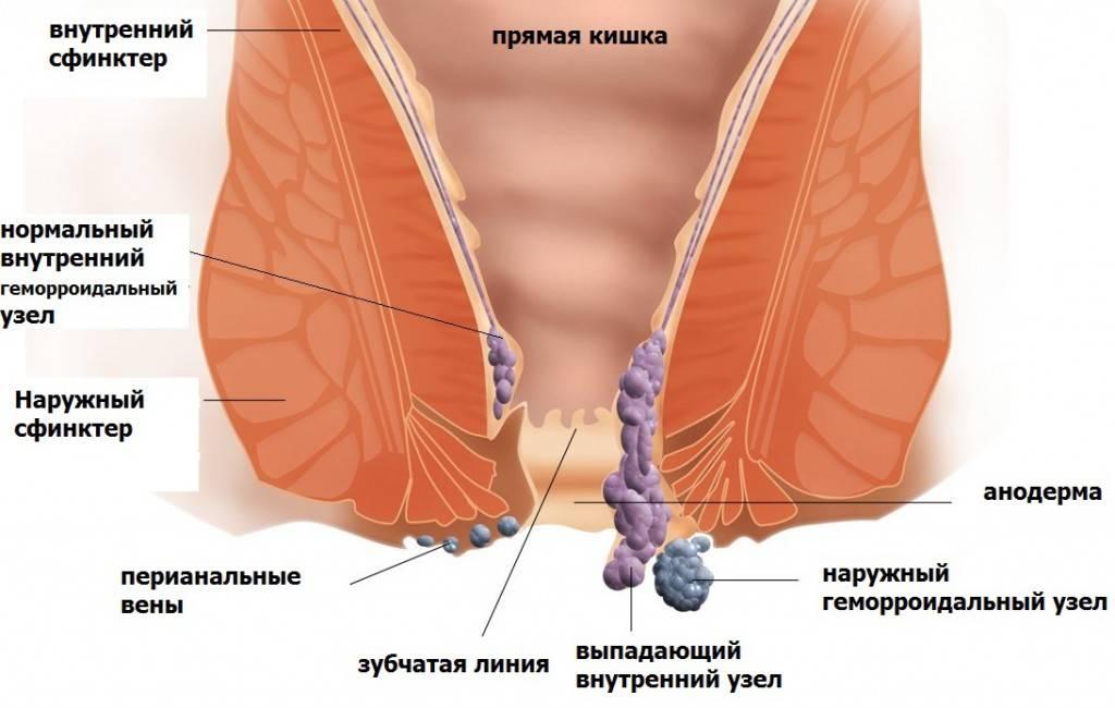 Геморрой и его симптомы