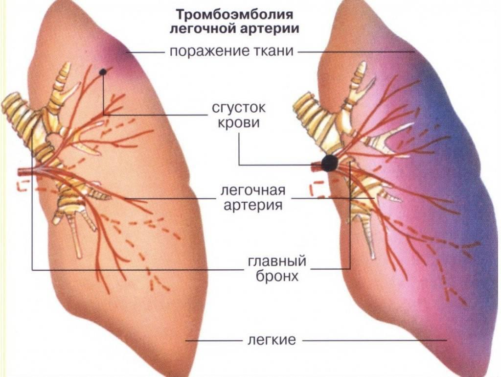 Клиника болезни