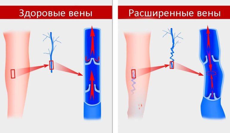 Расширенные вены и здоровые