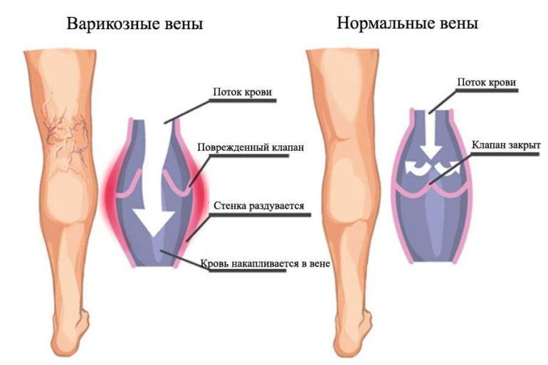 Клиника больных и здоровых вен на ногах