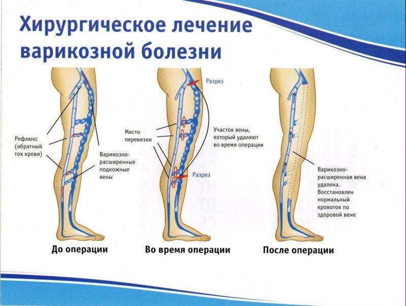 Операция на ногах