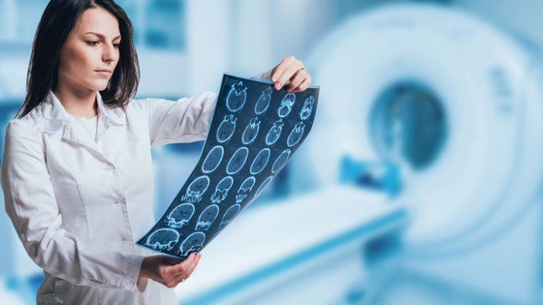 Астроциома. Что это, какие симптомы, как лечится?